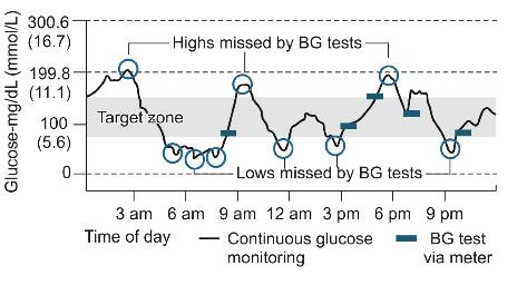 glükoosimonitooring