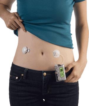 diabeet - glükoosimonitooring